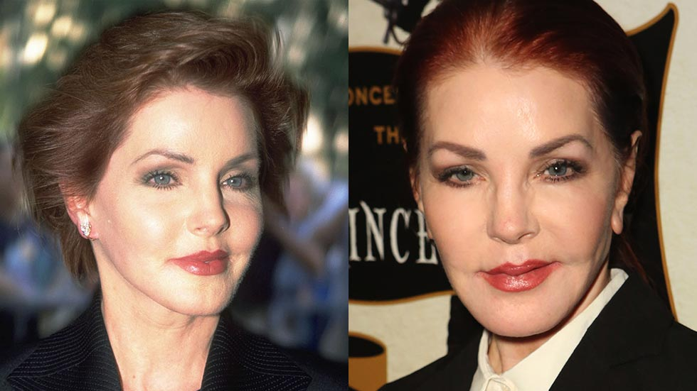 Most plastic surgery celebrity nightmares